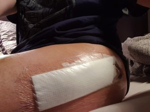 Hip replacement surgery scar, hidden under the waterproof dressing and pre-bruising