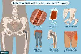 Hip replacement risks - who wants one?